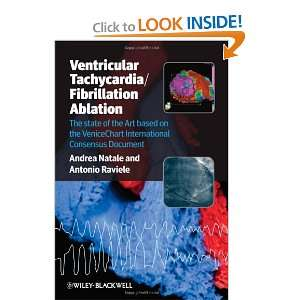 Ventricular Tachycardia / Fibrillation Ablation The state