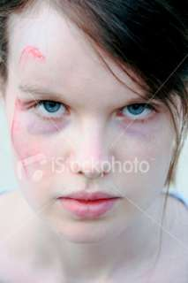 Femmes, Visage, Ecchymose, Coup,  Collection de photos  iStock FR